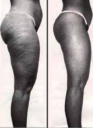 cellulite weight loss