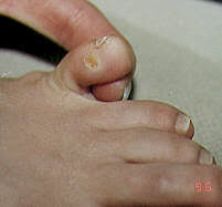 corns on the foot