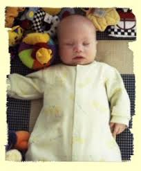 downs syndrome baby