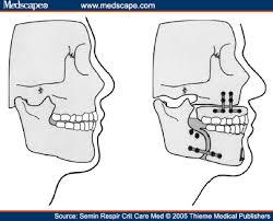 lefort i osteotomy