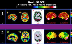 brain spect scan
