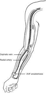 arteriovenous fistulas