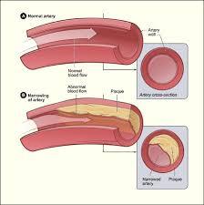 cholesterol heart