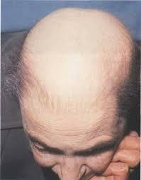 balding in women