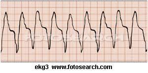 ekg tachycardia