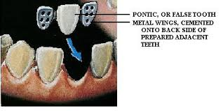 cantilever bridge teeth