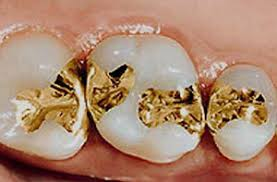 gold tooth fillings
