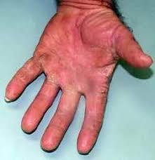 hand fungus