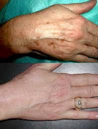 chemical skin peeling