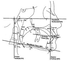 cephalometric points