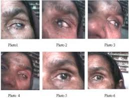 eye ulceration