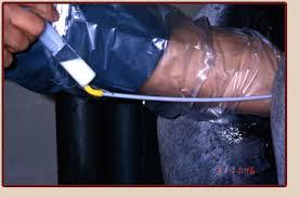 equine artificial insemination