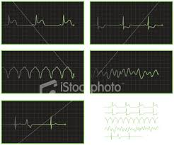 abnormal ekg pictures