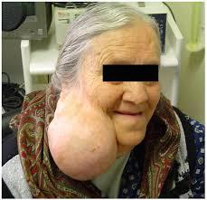 pleomorphic adenoma parotid gland