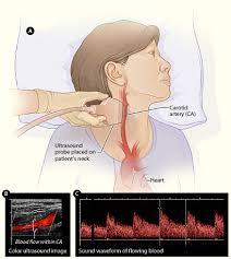 neck ultrasound