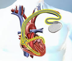 biventricular pacemakers