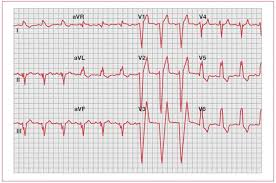 left bundle branch block ecg