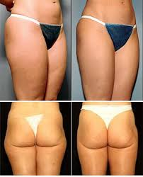 photos of liposuction