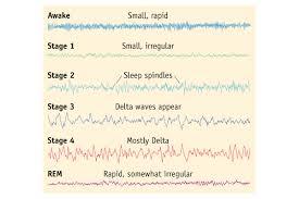 brain wave patterns