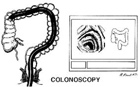 fiberoptic colonoscope