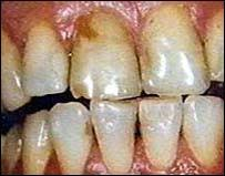 fotos de dientes con caries