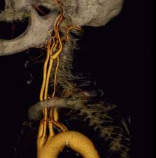 carotid artery pictures