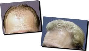 hair unit