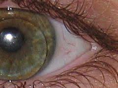 lentes de contacto duros