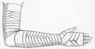 bandaging hand