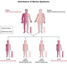 marfan syndrome genetic