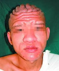 scalp muscles