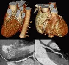 ct coronary