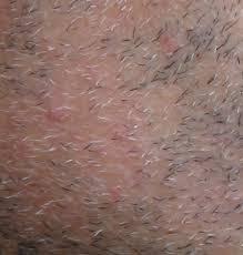 beard alopecia