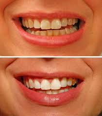 bad teeth before and after