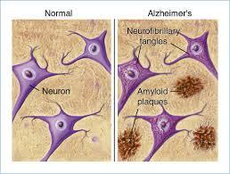 amyloid alzheimer
