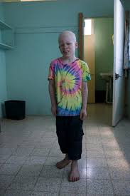 albino syndrome