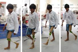 prosthetic knee