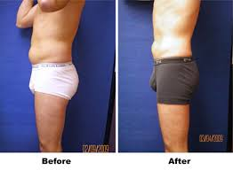 male weight loss