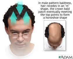 baldness men