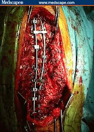 scoliosis spinal fusion