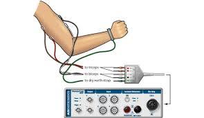 median nerve stimulation