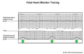 electronic fetal heart monitoring