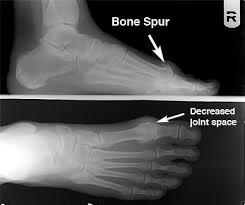 big toe bone spur