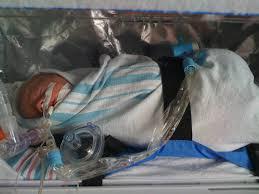 34 week premature baby