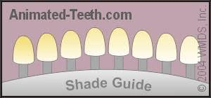 dental shade