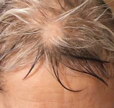alopecia regrowth