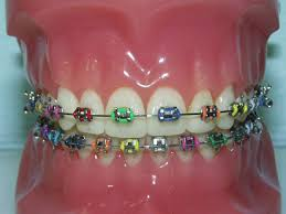 braces mouth