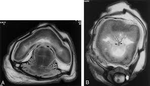 alobar holoprosencephaly