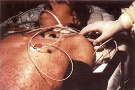 paciente intubado