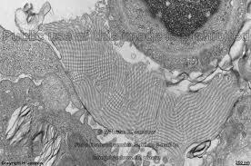 tubular myelin